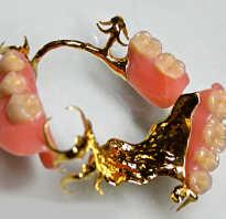 Какое золото используют для зубных коронок