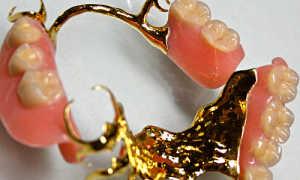 Из какой пробы золота делали зубные коронкив СССР