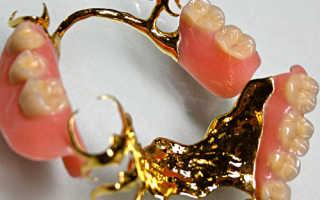 Золото какой пробы идет на изготовление зубных коронок