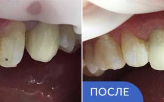 Реставрация зубов не дорого