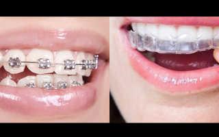 Исправление прикуса челюсти у взрослых