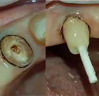 Наращивание реставрация передних зубов