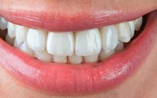 Композитная реставрация зубов в твери
