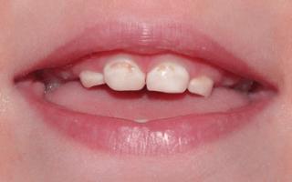 Посеребрение зубов у детей — этапы процедуры, показания, альтернатива