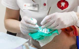 Реставрация зуба композитом