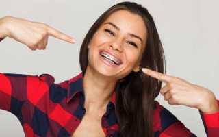 Как влияют брекеты на выравнивание зубов