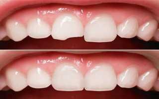 Реставрация передних зубов при беременности