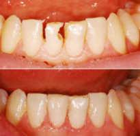 Реставрация зубов когда можно пить кофе