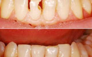 Методы лечения и реставрации зубов