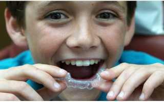 Элайнеры для выравнивания зубов до и после