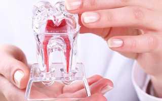 Реставрация зуба без нервов