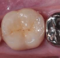 Металлические коронки на зубы — виды, установка, срок службы