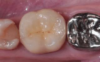 Метал для изготовления зубных коронок
