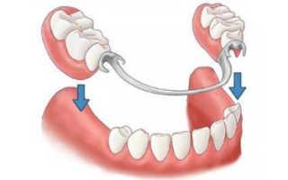 Как выглядит золотая зубная коронка