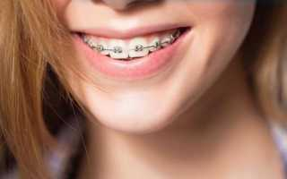 Брекеты для выравнивания зубов как ставят