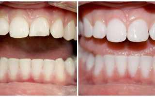 Наращивание зубов – методы, плюсы и минусы