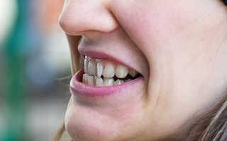 Прямая реставрация зубов. Непрямая реставрация зубов