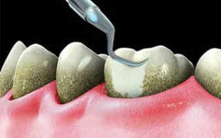 Как снимают зубные коронки ультразвуком