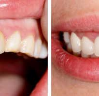 Прямая реставрация зубов кто делал