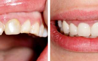 Реставрация зуба в Москве