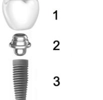 Виды зубных коронок на имплантаты