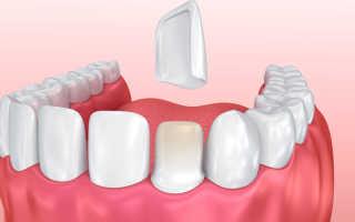 Керамические композитные зубные коронки