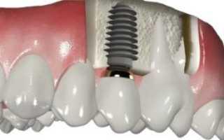 Установка коронки на зуб этапы