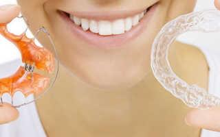 Как выровнять зубы без брекетов: альтернативные методы и их особенности