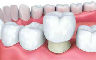 Какие коронки ставить на жевательные зубы