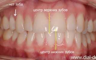 Выравнивание зубов и эстетическое протезирование керамикой