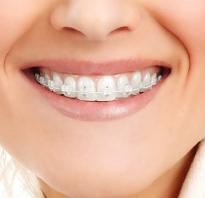 Дырка на зубной коронке