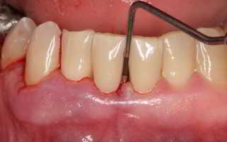 Как восстановить зубы при пародонтите