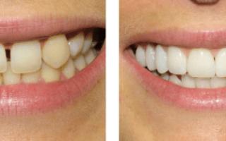 Эстетическая реставрация зубов: и фото