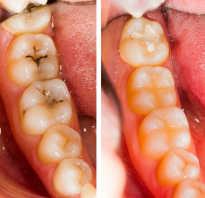 Художественная реставрация передних зубов в Москве