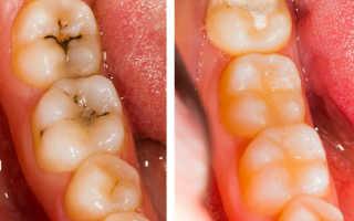 Художественная реставрация зуба или коронка