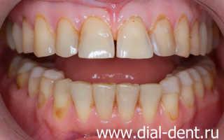 Выравнивание зубов коронками до и после