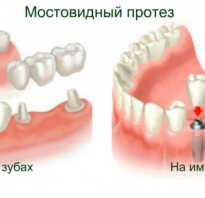 Клей для зубных протезов — обзор