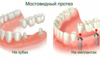 Что такое клей для зубных коронок и как им пользоваться