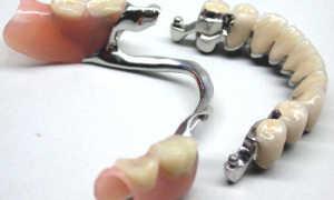 Клей для зубных протезов из пластмассы