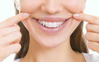 Что вставляют в зубы для выравнивания