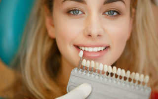 Зубные коронки цвет а1