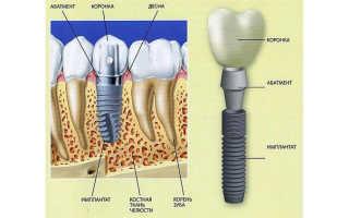 Материалы для зубных имплантов и коронок