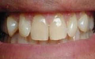 Где сделать качественную реставрацию зубов