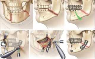 Хирургическое исправление прикуса возраст