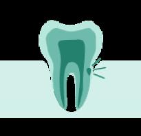 Удаление зубов при пародонтозе в Москве недорого