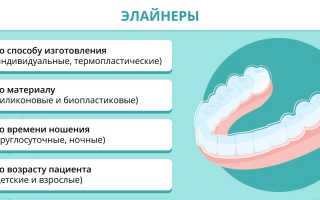 Капы для выравнивания зубов: принцип действия, разновидности, сроки лечения