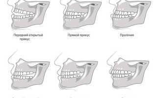 Возрастные ограничения при выравнивании зубов