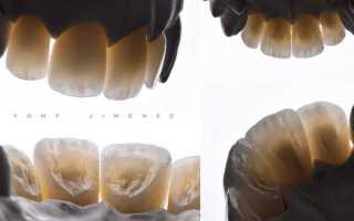 Виниры на депульпированные зубы