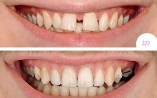 Убрать щель между передними зубами