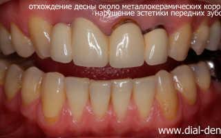 Замена коронки зуба